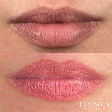 Dark Lip Correction cosmetic tattooing