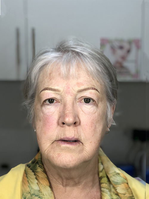 sydney after microblading service